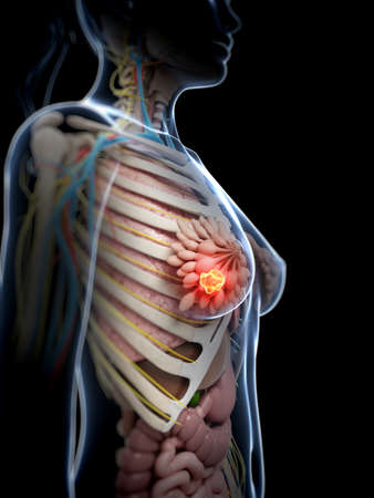 red breast: 3d rendered illustration of breast cancer Stock Photo