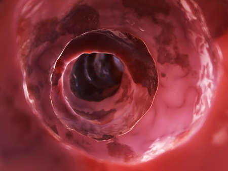 colon cancer: inside of an unhealthy colon