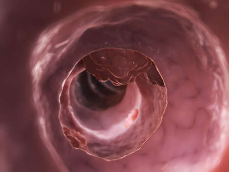 3d rendered illustration of a colon tumor illustration