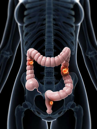 3d rendered illustration of colon cancer illustration