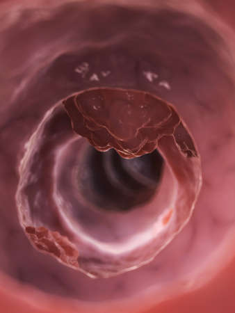 colon cancer: 3d rendered illustration of a colon tumor Stock Photo