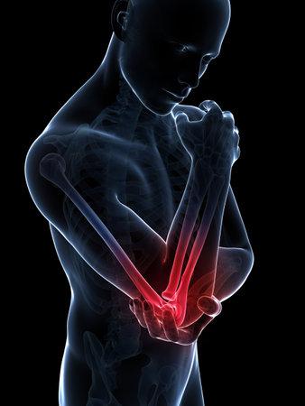 elleboog: 3d teruggegeven illustratie van pijn in de elleboog