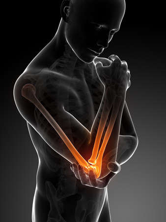 3d rendered illustration of pain in the elbow Stock Photo