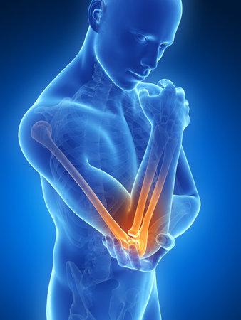 3d gerenderten Darstellung der Schmerzen im Ellbogen Standard-Bild