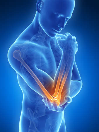 elbows: 3d rendered illustration of pain in the elbow Stock Photo