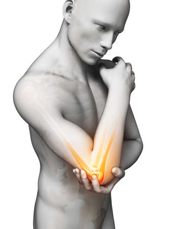 elbow pain: 3d rendered illustration of pain in the elbow Stock Photo