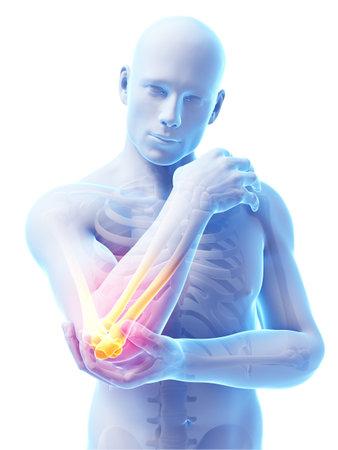 esqueleto humano: 3d rindi� la ilustraci�n de dolor en el codo Foto de archivo
