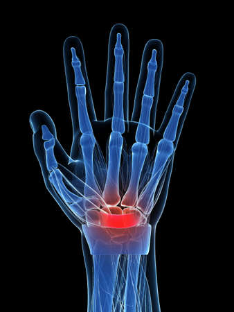 carpal tunnel: 3d rendered illustration of the carpal tunnel syndrome