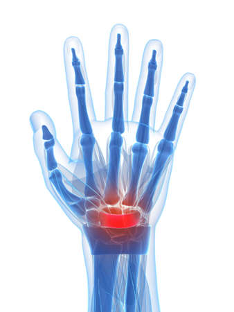 inflamed: 3d rendered illustration of the carpal tunnel syndrome