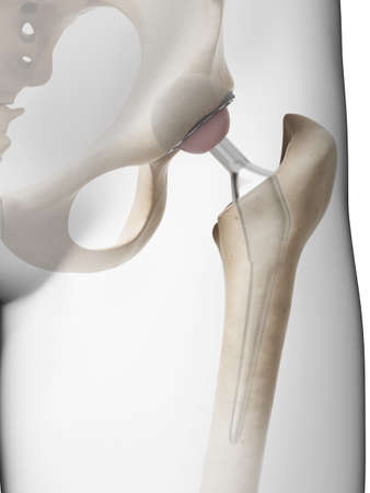 femur: 3d rendered illustration of a hip replacement Stock Photo