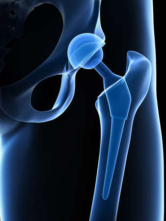 bone fracture: 3d rendered illustration of a hip replacement Stock Photo
