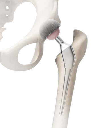 3d rendered illustration of a hip replacement illustration