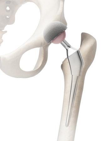 3d rindió la ilustración de un reemplazo de cadera