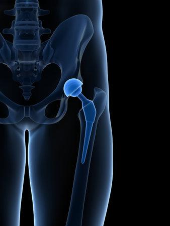 osteoarthritis: 3d rindi� la ilustraci�n de un reemplazo de cadera Foto de archivo
