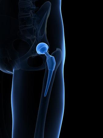hip fracture: 3d rindi� la ilustraci�n de un reemplazo de cadera Foto de archivo