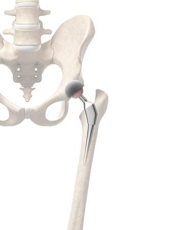 fractura: 3d rindi� la ilustraci�n de un reemplazo de cadera Foto de archivo