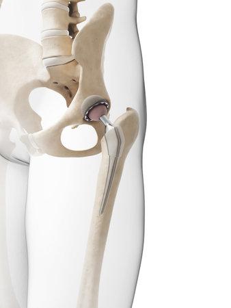 3d rindió la ilustración de un reemplazo de cadera Foto de archivo