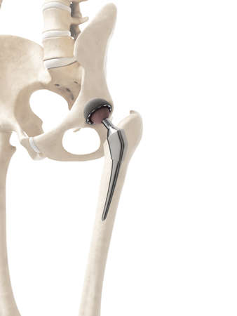 esqueleto humano: 3d rindi� la ilustraci�n de un reemplazo de cadera Foto de archivo