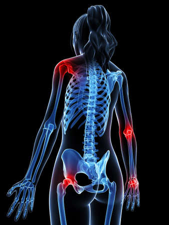 arthritis pain: 3d rendered illustration of painful joints Stock Photo