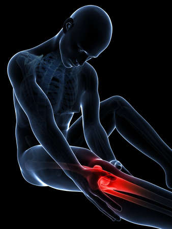 muscle bone: 3d rendered illustration of pain in the knee Stock Photo