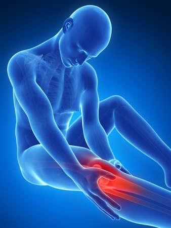 adult bones: 3d rendered illustration of pain in the knee Stock Photo