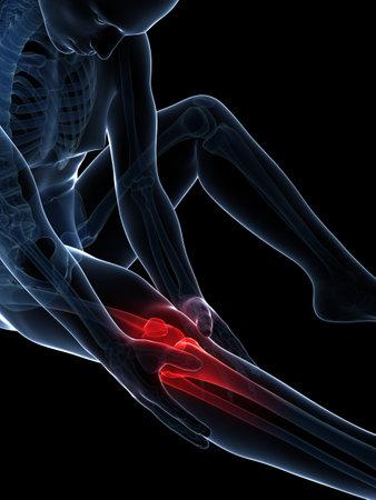 hip fracture: 3d rindi� la ilustraci�n de dolor en la rodilla Foto de archivo