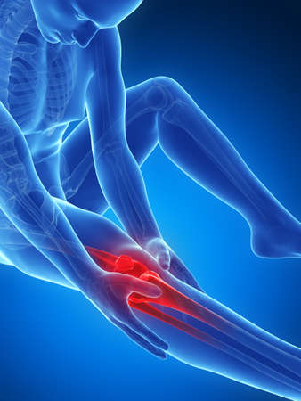 on hands and knees: 3d rendered illustration of pain in the knee Stock Photo