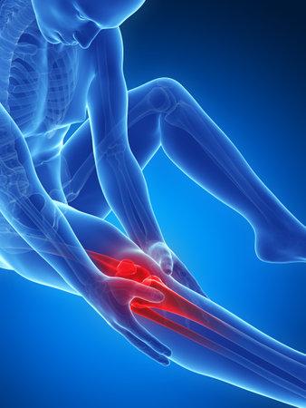 dolor muscular: 3d rindió la ilustración de dolor en la rodilla Foto de archivo