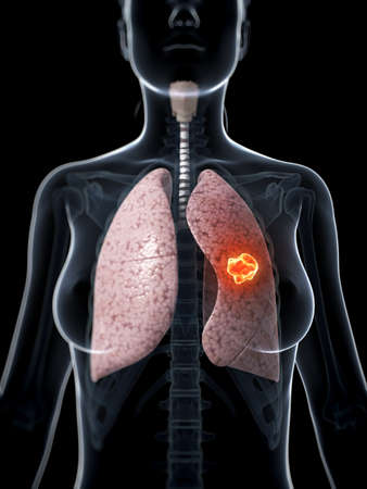 3d rendered illustration of lung cancer illustration