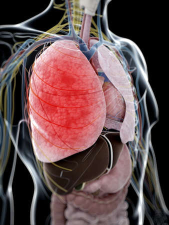 polmone: Illustrazione di rendering 3D di polmonite Archivio Fotografico
