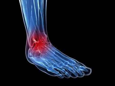 3d rindió la ilustración de un pie doloroso