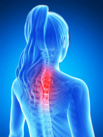 back of head: 3d rendered illustration of a painful neck