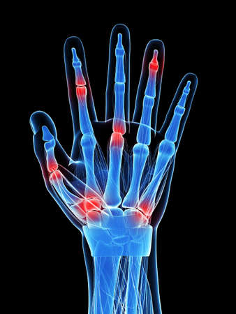 arthritis pain: 3d rendered illustration of painful finger joints Stock Photo