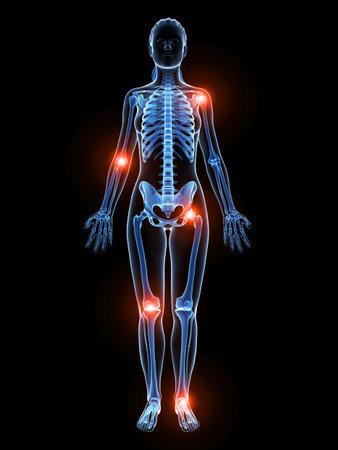 artrite: 3d ha reso l'illustrazione di articolazioni dolorose