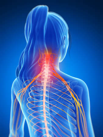 neck pain: 3d rendered illustration of a painful neck