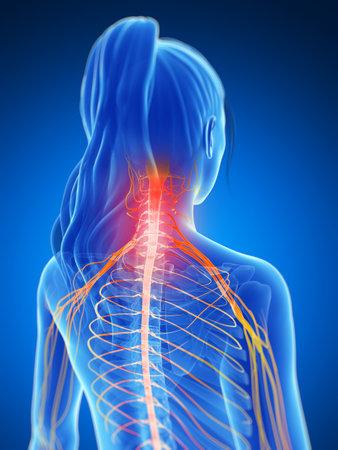 nervios: 3d rindió la ilustración de un cuello doloroso