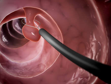 colonoscopy: 3d rendered illustration of a polyp removal Stock Photo