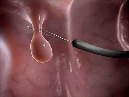 3d rendered illustration of a polyp removal illustration