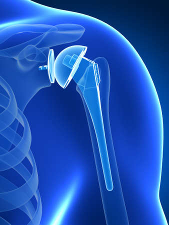 replacements: 3d rendered illustration of a shoulder replacement