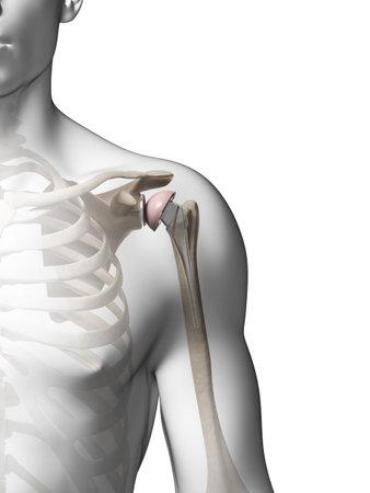 shoulder anatomy: 3d rendered illustration of a shoulder replacement