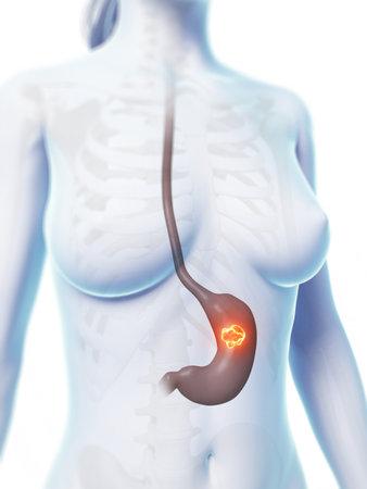 gastric: 3d rendered illustration of stomach cancer