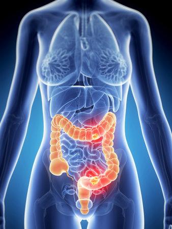 colon: 3d rendered illustration of colon cancer