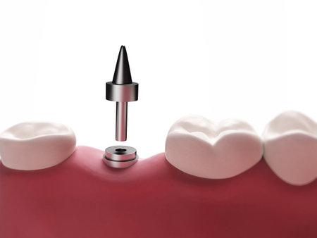 dental research: 3d rendered illustration of a dental implant