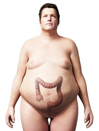허리의 잘룩 한 선: 체중 사람의 3d 렌더링 된 그림 - 결장