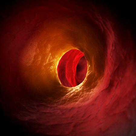 erythrocyte: Illustrazione di rendering 3D di arteriosklerosis