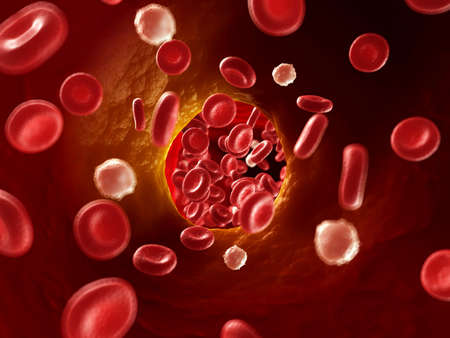 body fat: 3d rendered illustration of arteriosklerosis Stock Photo