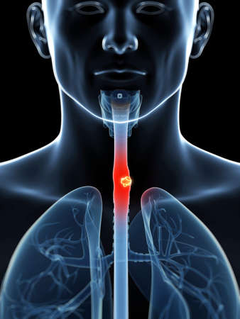 esophagus: 3d rendered illustration of esophagus cancer