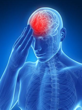 anatomie mens: 3d teruggegeven conceptuele illustratie van het hoofd pijn Stockfoto