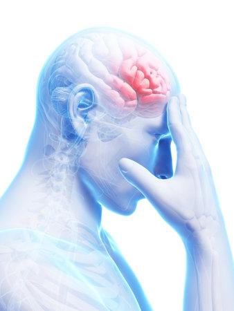 male headache: 3d rindi� la ilustraci�n conceptual de dolor de cabeza