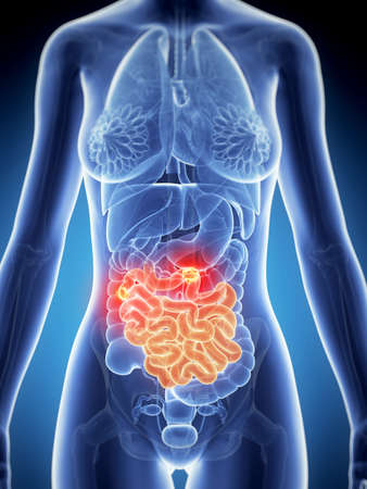 3d rendered illustration of the female anatomy - intestine cancer illustration
